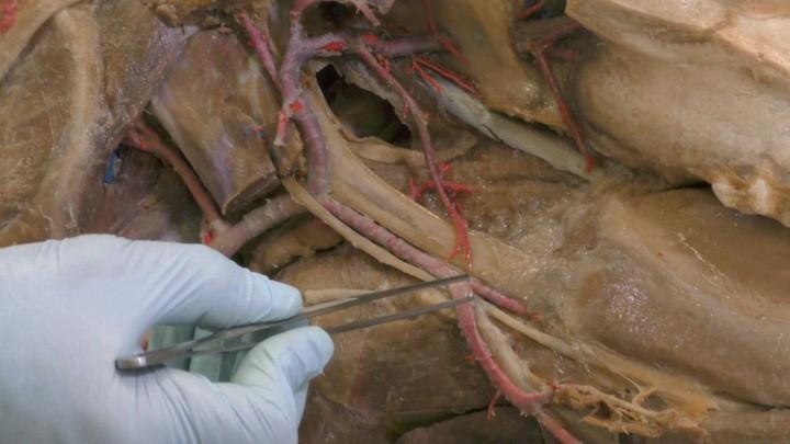Riego arterial de la cabeza del caballo