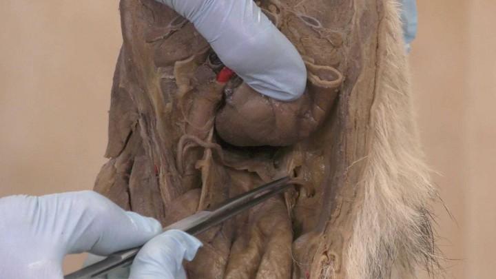 Excavaciones peritoneales. Macho.
