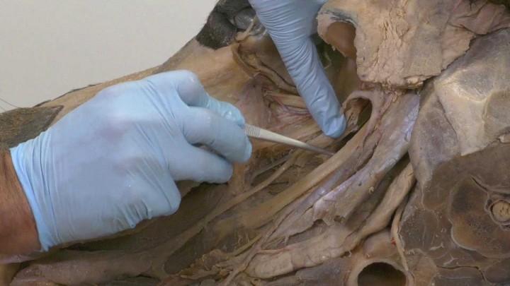 Estructuras anatómicas del plano medio de la cabeza del caballo.