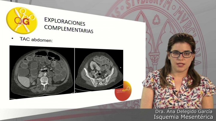 Caso 2: Isquemia mesentérica