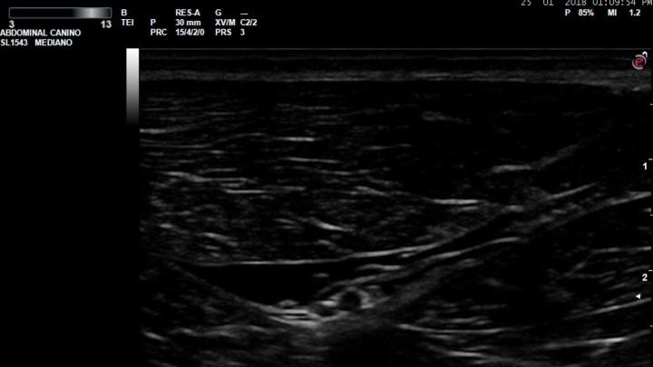 Bloqueo ecoguiado nervio Ciático- Abordaje  sobre Fémur medio en el perro