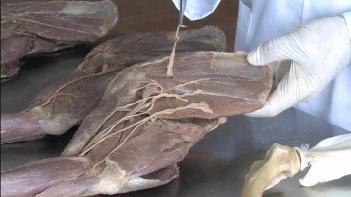 Musculatura intrínseca del Miembro Torácico del perro: plano topográfico medial. Principales estructuras vasculares y nerviosas