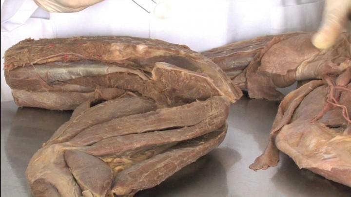 Musculatura intrínseca profunda del Miembro Pelviano del perro: plano topográfico medial. Principales estructuras vasculares y nerviosas